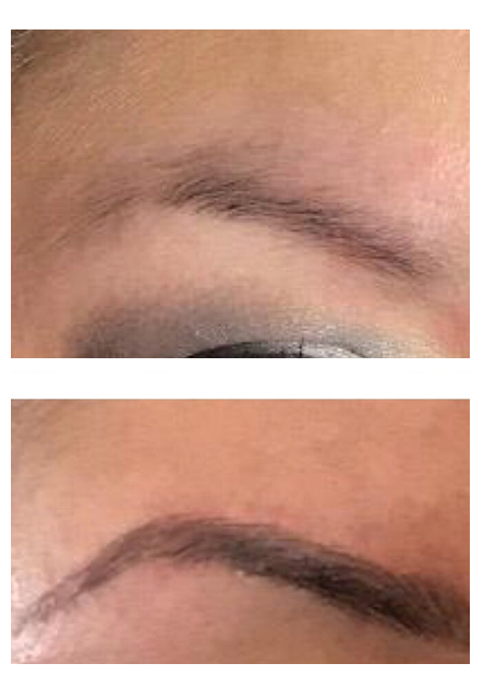 before and after Hinsdale ombre brows