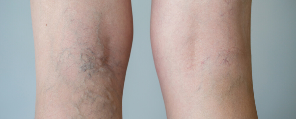 Hinsdale spider vein treatment