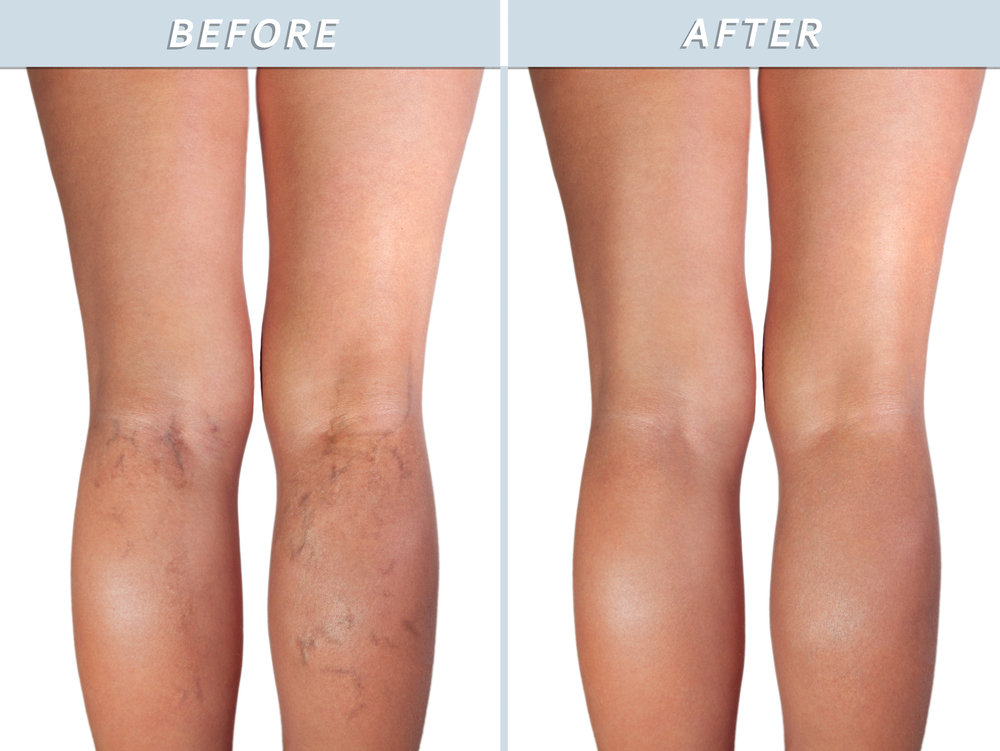 Does insurance cover varicose vein removal?