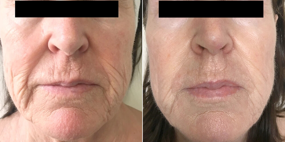 hinsdale tribella before and after