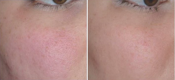 aquagold proprietary anti aging cheeks before and after