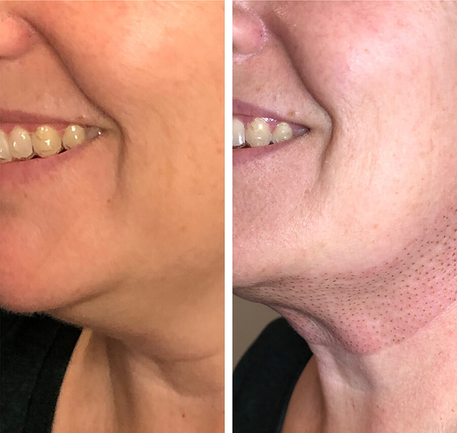 plaxel-neck-lift-before-one-day-after