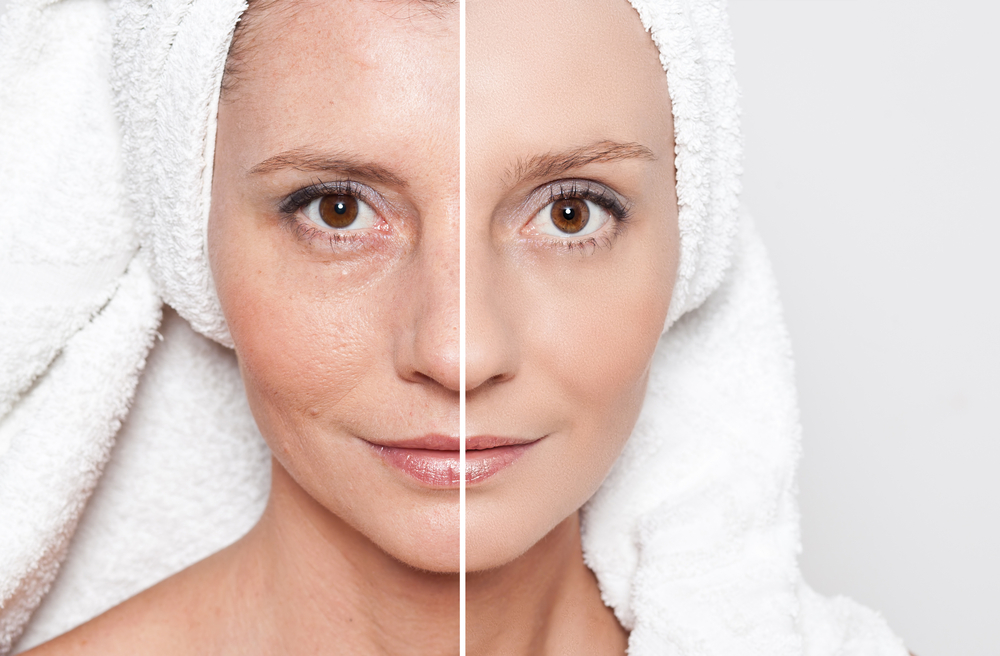 Improve overall skin texture